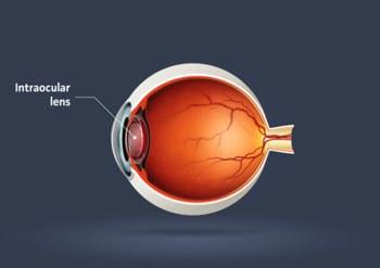 Rock-Hill-Eye-Center-Intraocular-Lens-Diagram